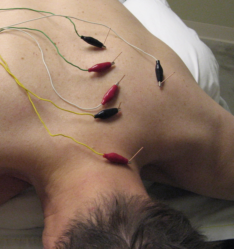 A skeptic visits a chiropractor for acupuncture treatment