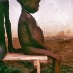 starved_girl