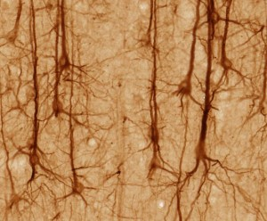 Neurons - creative commons (image by UC Regents)